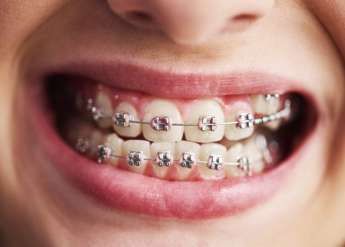 Shot of child's teeth with braces