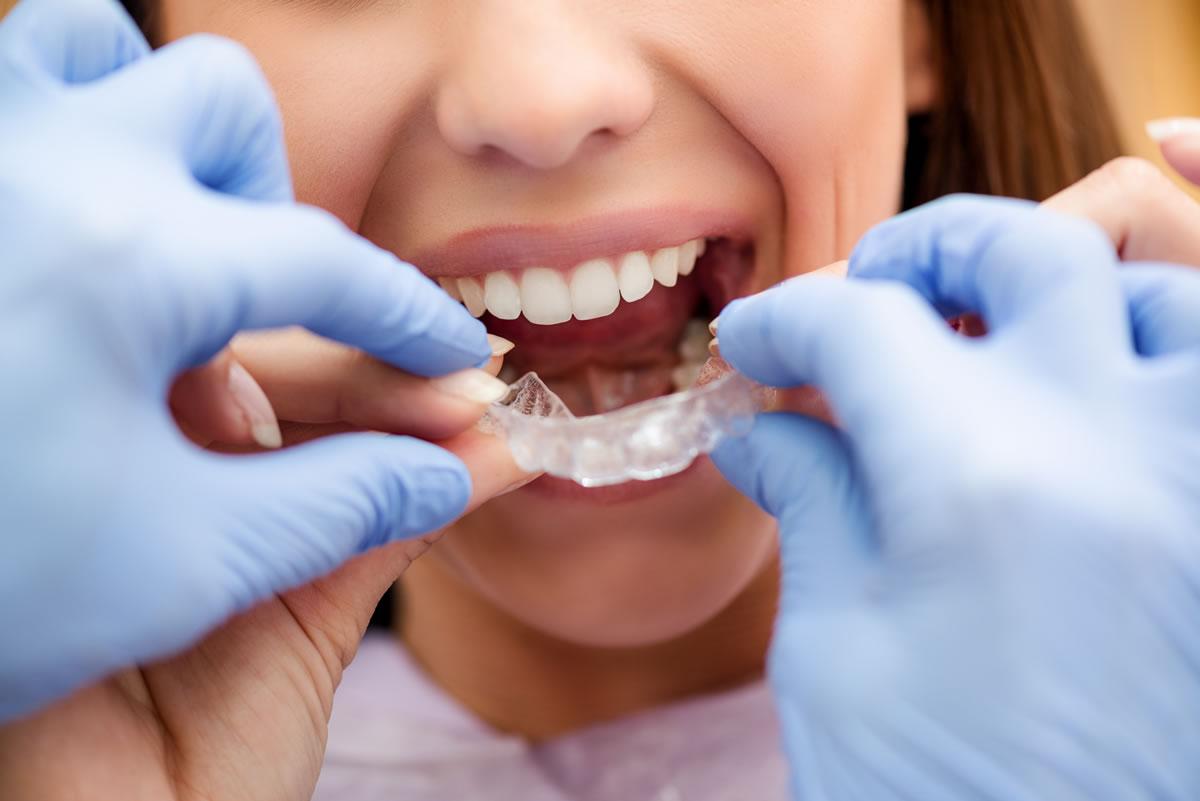 invisible-braces-dublin-6-crown-dental-clinic-L-1.jpg